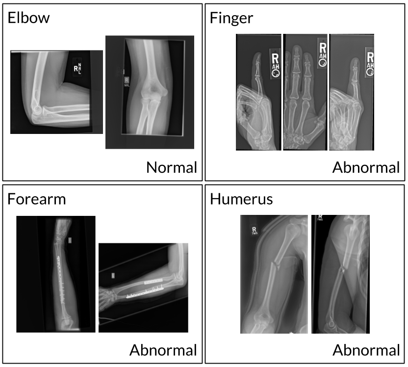 MURA Dataset: Towards Radiologist-Level Abnormality