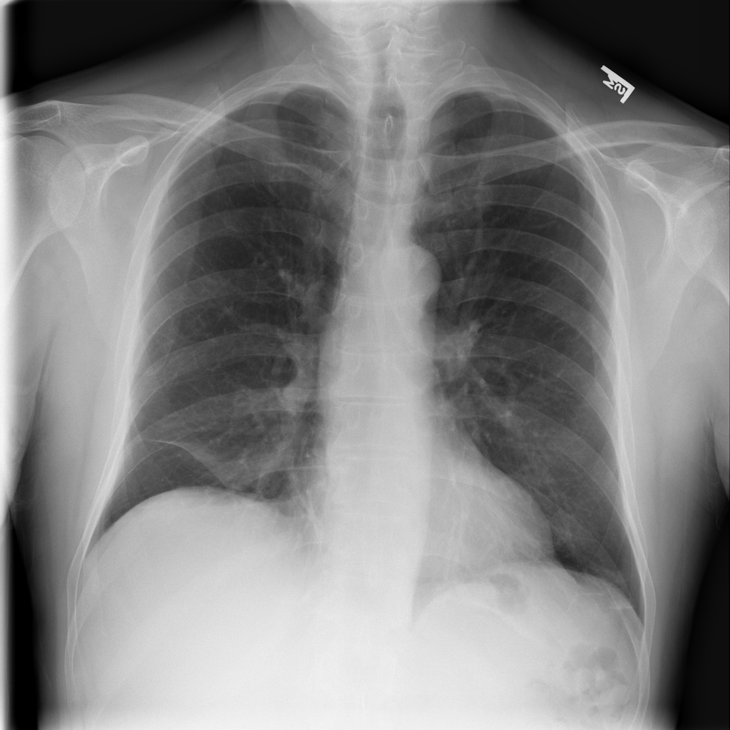 Chest X Ray In Clinical Practice