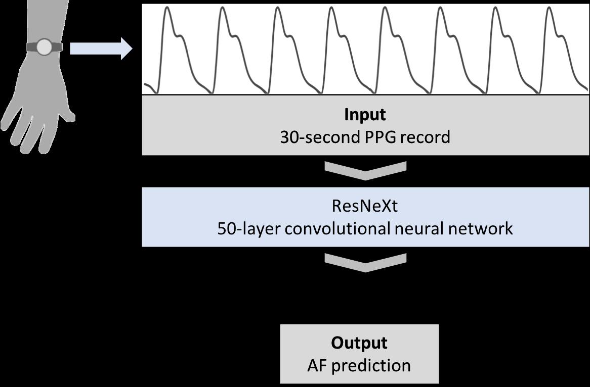diagram of electrocardiogram paper atrial fibrillation resources